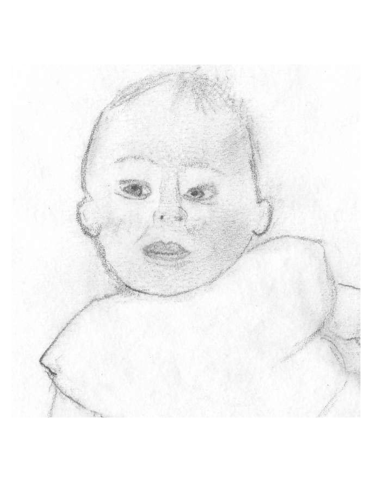 Torticollis Baby Sketch Cropped